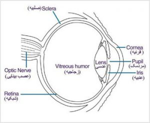 cataract-1